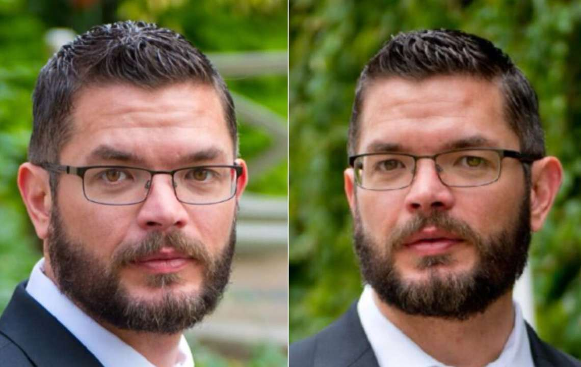 Jeremy with a full beard. 6 months after his beard hair transplant