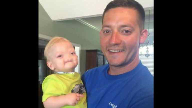 Boy Born Without Nose Dies