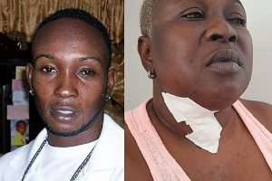 Thin Line Between Love and Hate. Man Slashed His Ex-Lovers Neck