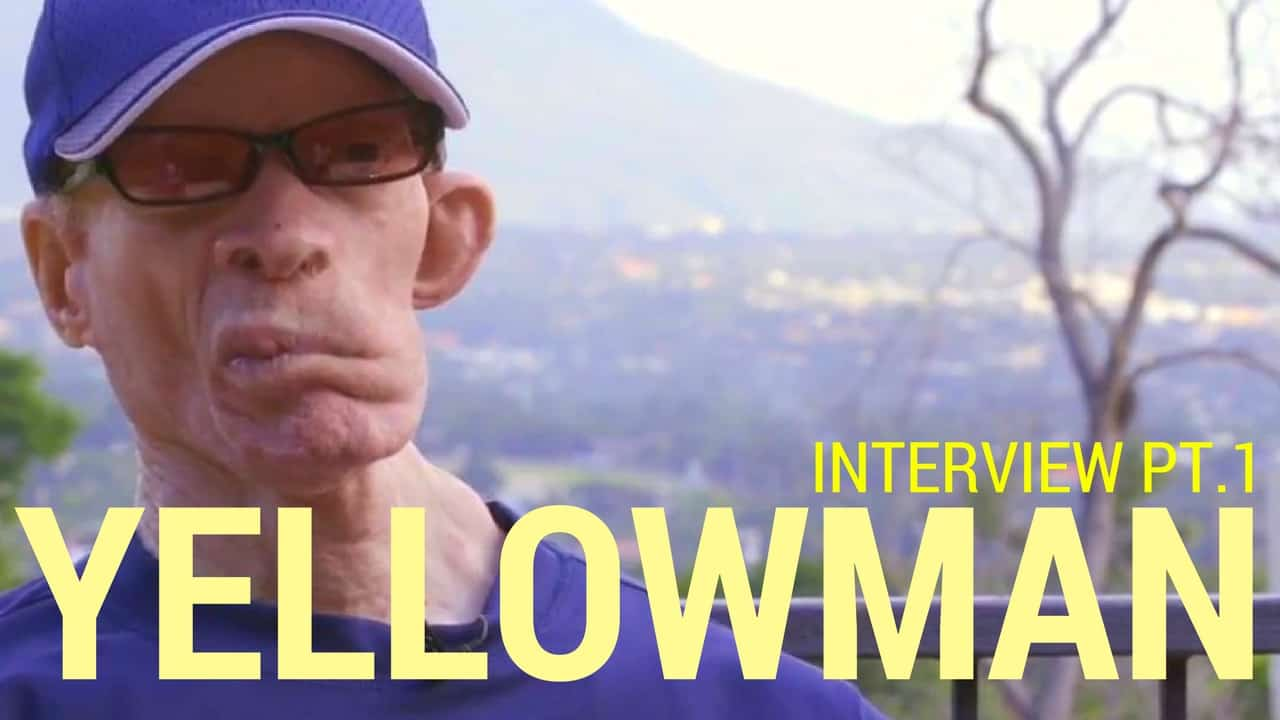 Yellowman Lifestyle, Income, Career, House, Cars & Net Worth