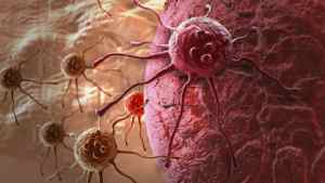 Scientists May Have Found A Way To Stop Cancer From Metastasizing