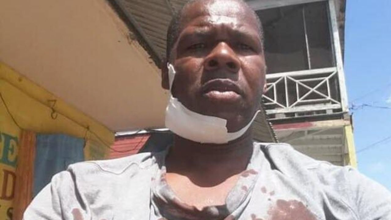 CAB DRIVER THROAT SLASHED AFTER 'SNEEZING TO SEASONING' IN ST ANN
