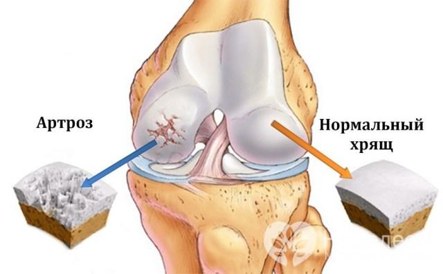 Мазь растяжение связок локтевого сустава лечение