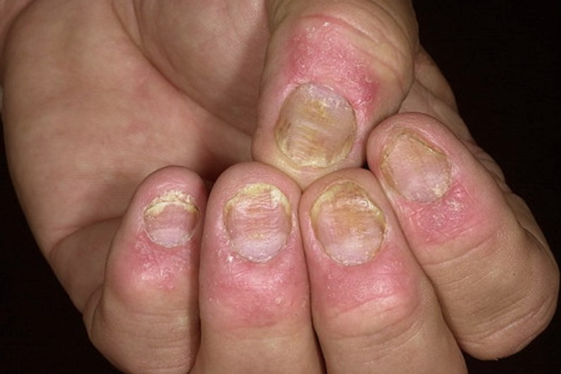Nail Psoriasis Pictures Treatment Symptoms Causes