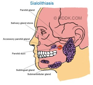 Sialolithiasis  Causes, Pictures, Symptoms, Treatment, Prevention