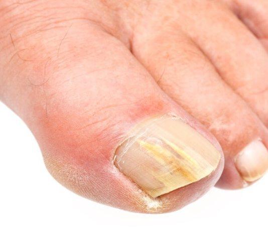 Εχετε σκληρό νύχι στο πόδι;