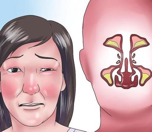 Τι κάνεις για τη βουλωμένη μύτη;