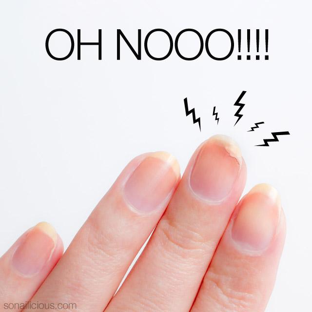 Σπάνε τα νύχια; Θα κάνεις το κόλπο!