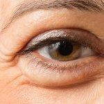 puffy-eye-1200×630-min