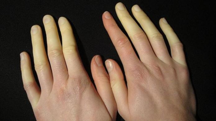 Κακόπαθαν τα χέρια από το κρύο;
