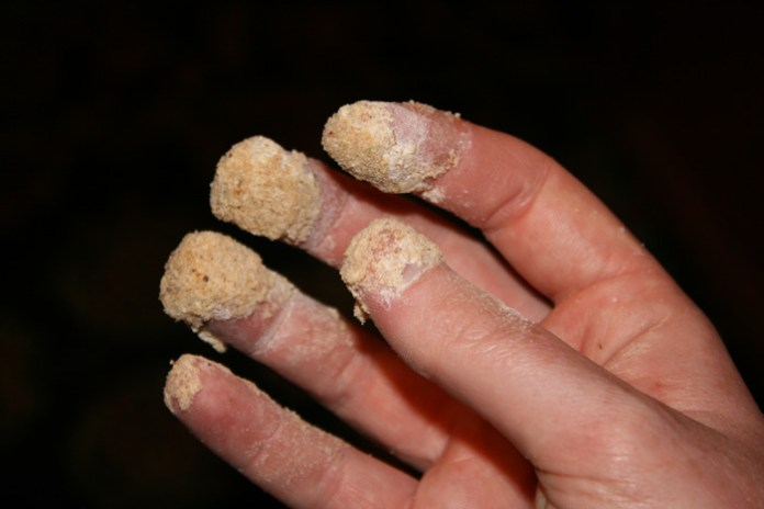 Πως θα βγάλεις την κόλλα από τα δάχτυλα
