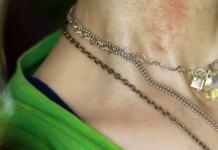 Για την αλλεργία στα μεταλλικά κοσμήματα