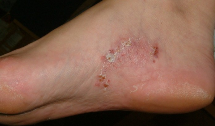 Σχετικά με τους μύκητες στα πόδια και πως θα τους αποφύγετε