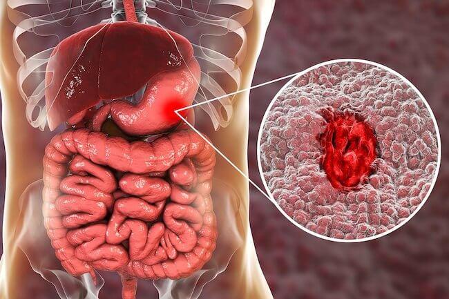 Έλκος στομάχου – ποιες τροφές προτείνουν οι ειδικοί;