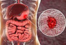 Έλκος στομάχου - ποιες τροφές προτείνουν οι ειδικοί;