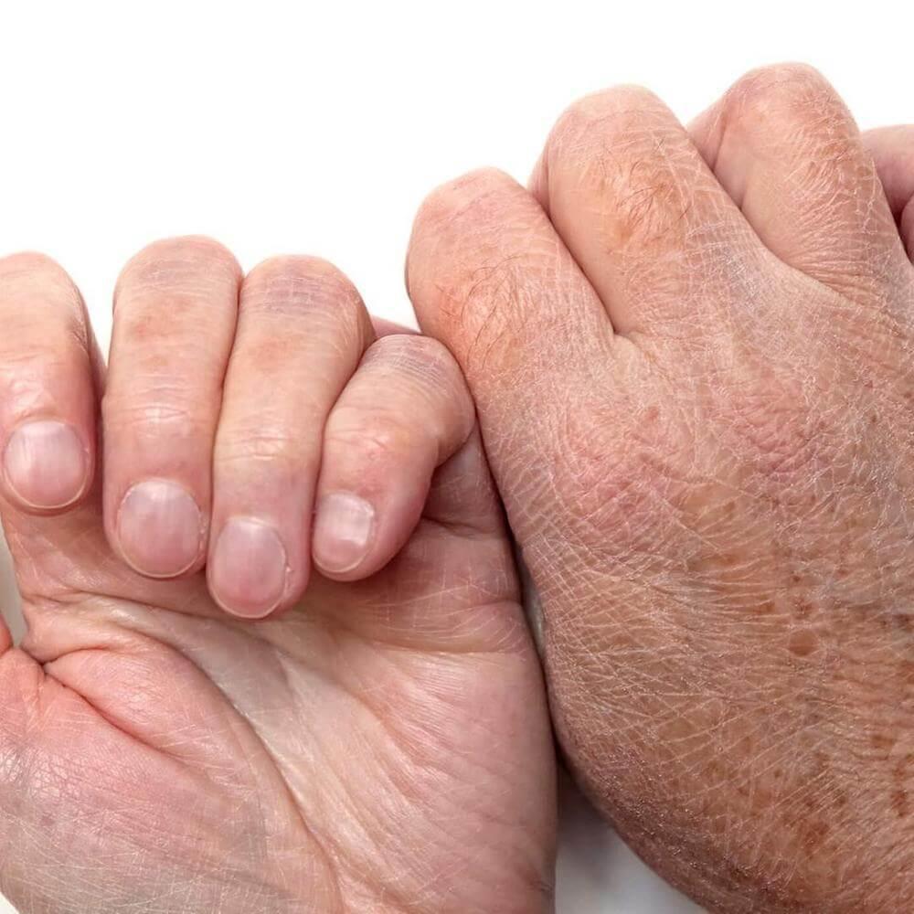 Χέρια ταλαιπωρημένα από το κρύο