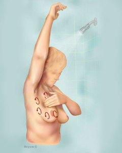 breast_self_exam4_tcm8-326738