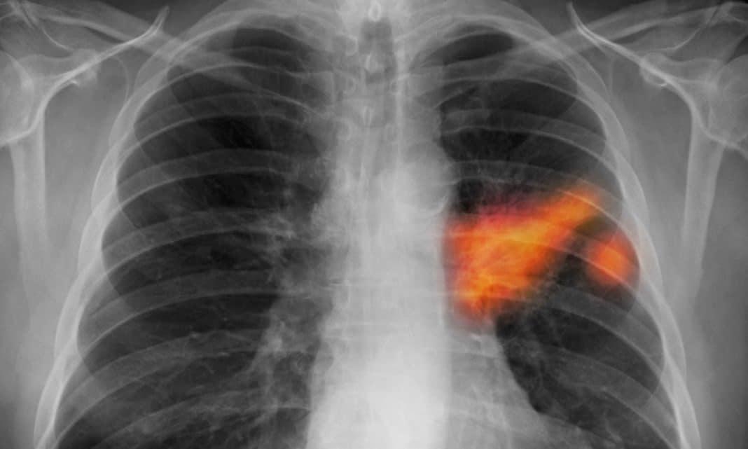 Высокое давление при онкологии — Давление и всё о нём