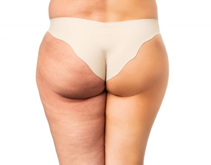 Cellulite treatment med Aesthetik Chemnitz