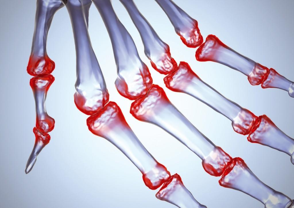 a kar ízületei fájnak, mint hogy kezeljék hogyan lehet kezelni az ujjak ízületeinek gyulladását