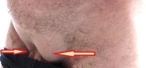Сколько можно поднимать после операции паховая грыжа. Реабилитация после удаления паховой грыжи у мужчин