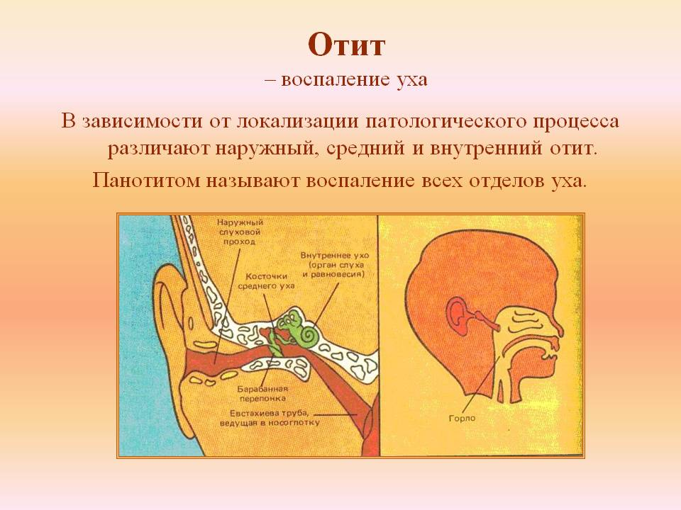 Какие нужны капли в ухо. Эффективные противовоспалительные ушные капли. Противовоспалительные и обезболивающие ушные капли