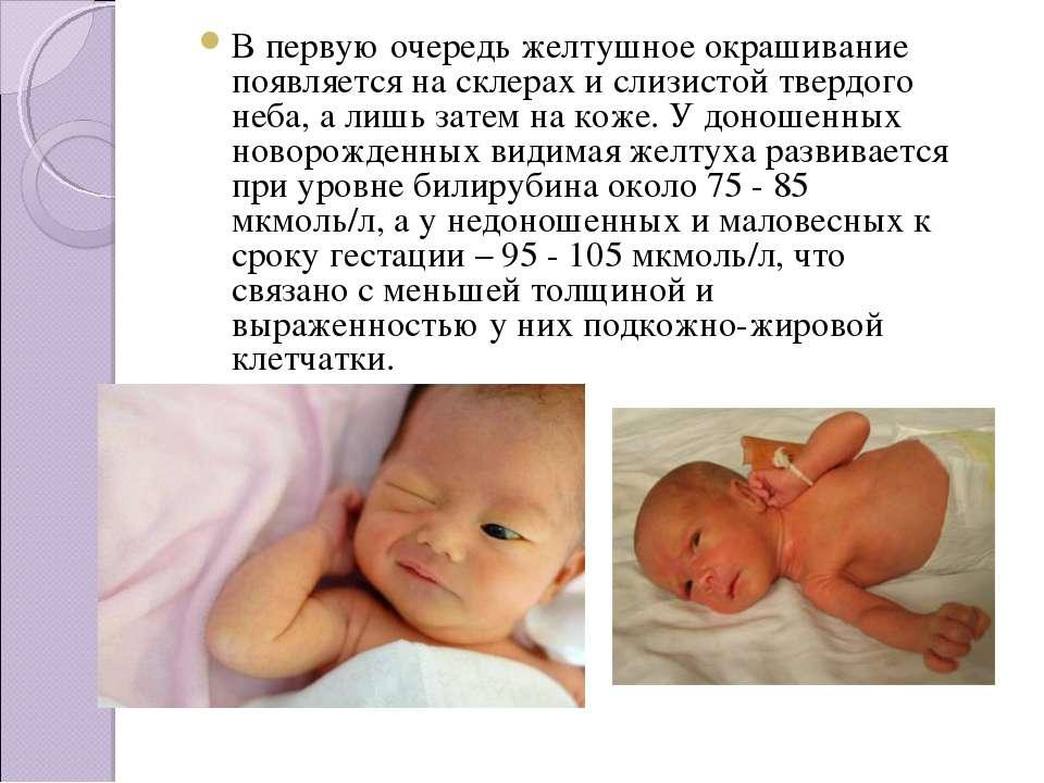 Почему новорожденный желтеет Почему ребенок желтеет после родов