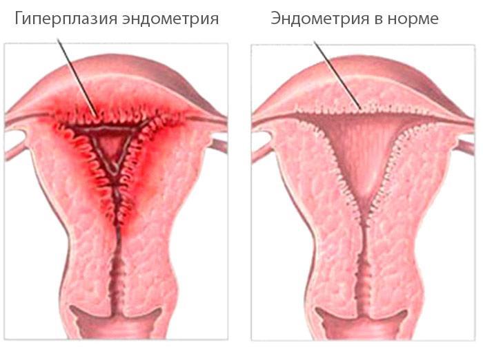 Почему колит внизу живота у женщин