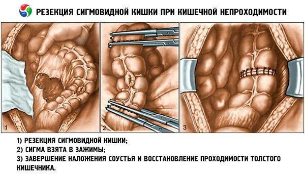 ízületi fájdalom a dermedés után)