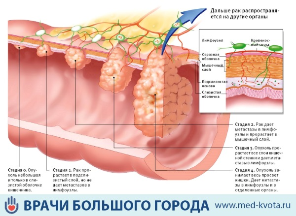 Рак прямой кишки: фото, первые симптомы и признаки, виды ...