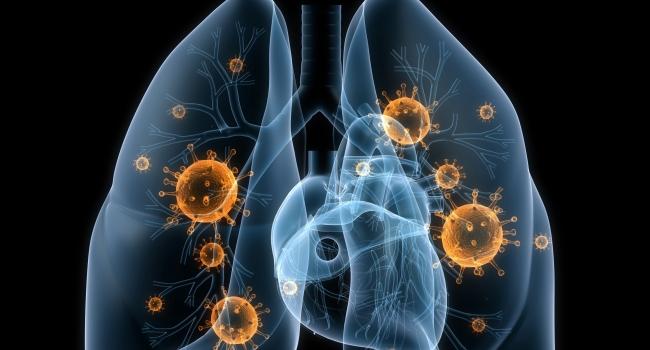 Картинки по запросу թոքախտ հիվանդություն
