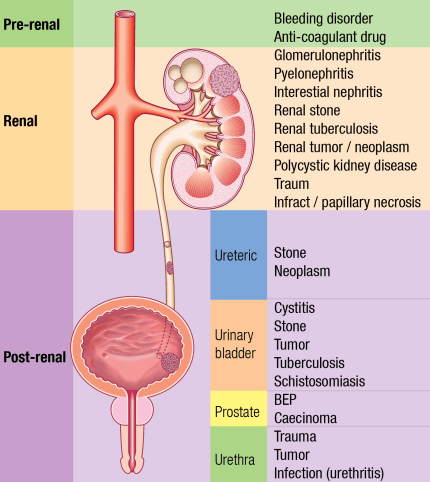 Causes of hematuria - Rimikri