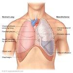 malignant pleural mesothelioma department of cardiothoracicthe pleura
