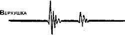 Приглушенные тоны сердца причины. Глухие тоны сердца, причины, лечение. Порядок аускультации сердца