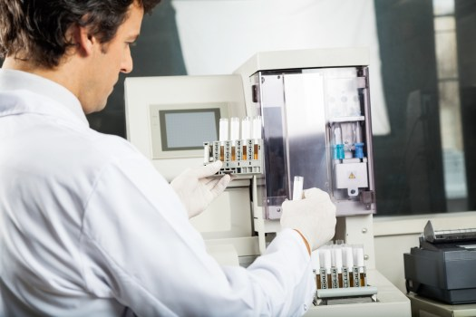 Medizinisches Labor BMA Urinanalyse