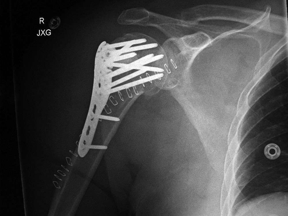 Fracture Neck Humerus Proximal