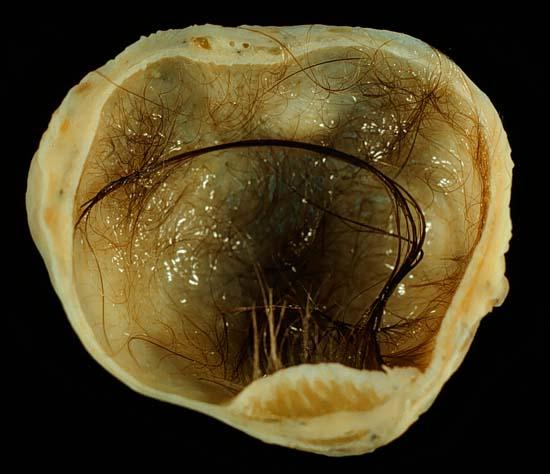 Ovarian teratoma or dermoid cyst