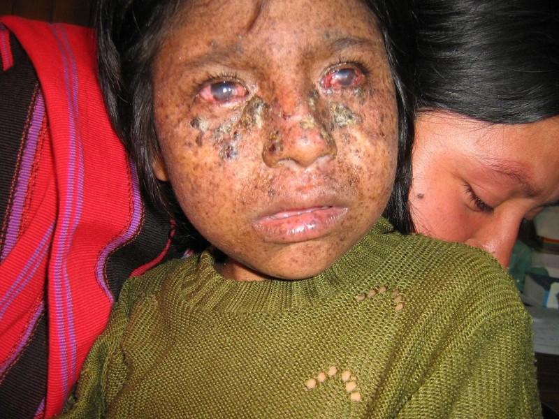 A girl with xeroderma pigmentosum