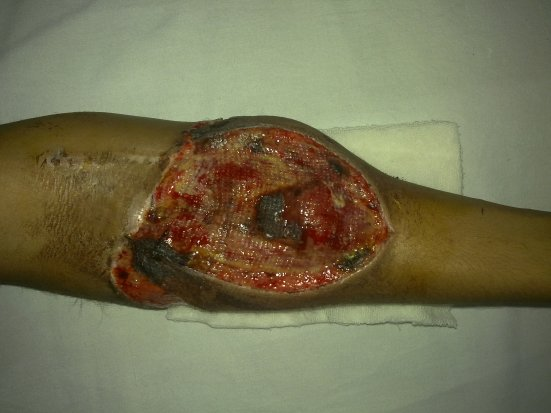 Large Wound Over Anterior Aspect of Forearm