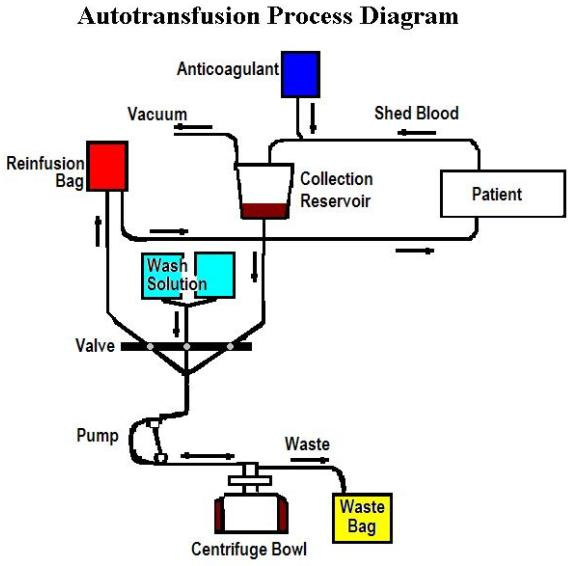 autologous blood transfusion