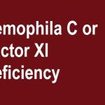 Hemophilia C Presentation and Treatment