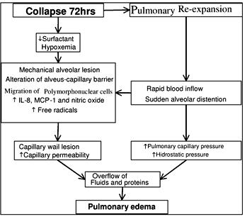 Reexpansion Pulmonary Edema