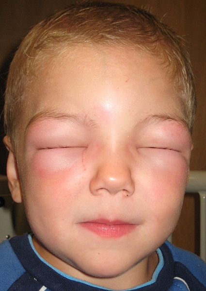 angioedema- public domain image from wikipedia