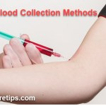 Blood Sampling or Blood Collection Methods