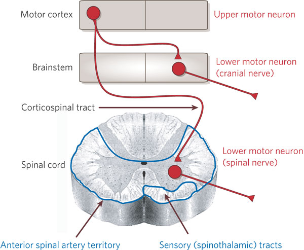 Image result for upper and lower motor neurons