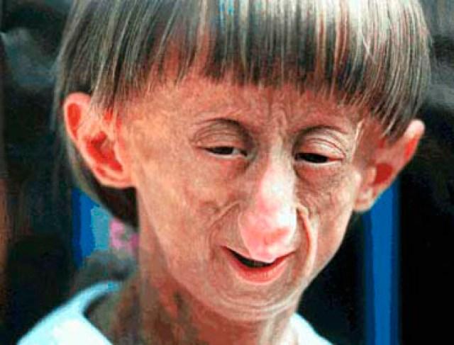 Resultado de imagem para Progeria