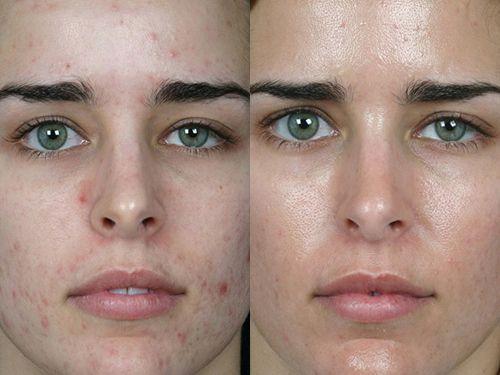 Глубокое очищение кожи – мануальная или ручная чистка лица