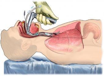 intubacion endotraqueal en urgencias