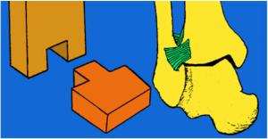 Arthrose de la cheville 2