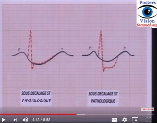 infarctus-du-myocarde-crise-cardiaque